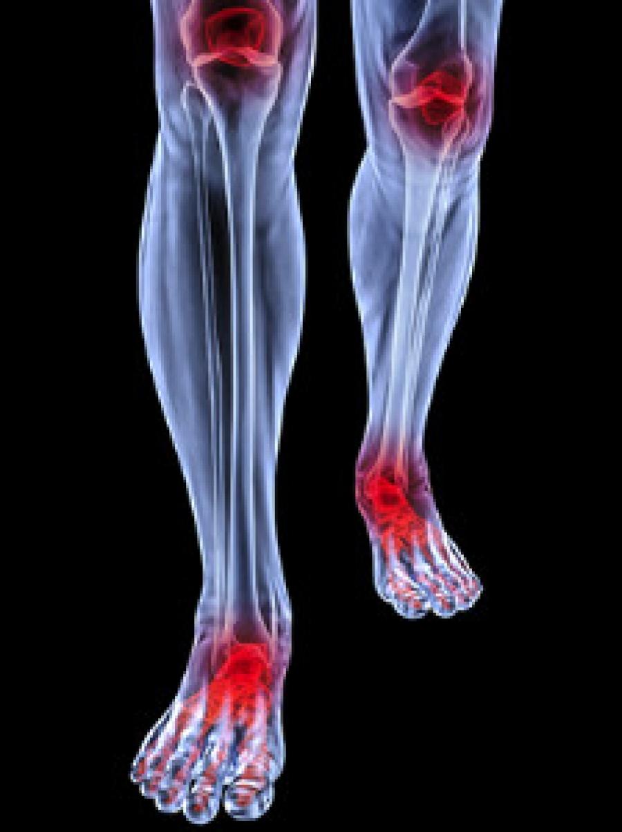 Rheumatoid Arthritis Symptoms Causes